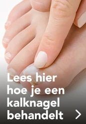 Kalknagels behandelen