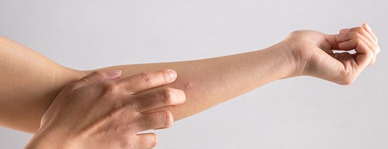 Muggenbult behandelen - tips van Holland & Barrett