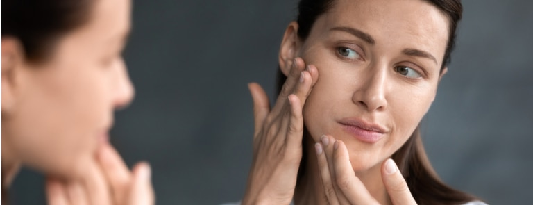 Herbal remedies to deal with adult acne image