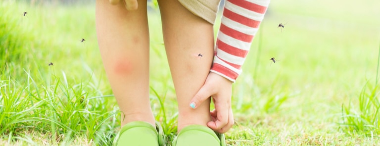 young child in field itching mosquito bite on leg