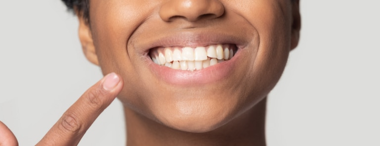 woman smiling dental hygiene