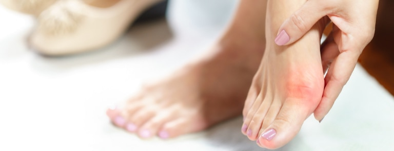 woman massaging bunion