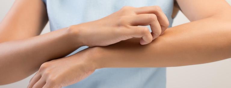 closeup of woman scratching arm