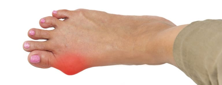 What is a Bunions