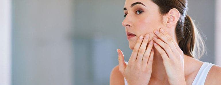 Bothered by adult acne? Omega-3 could help image