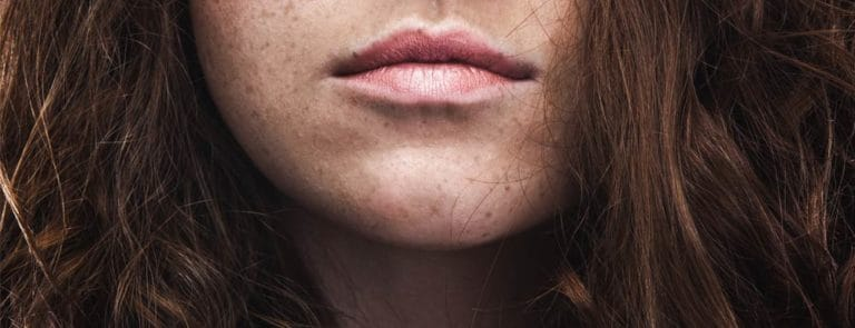 Woman with freckled face