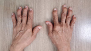 gout on hands and fingers