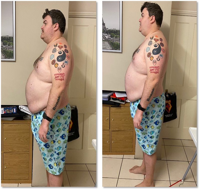 Ross Weight Loss Before and After