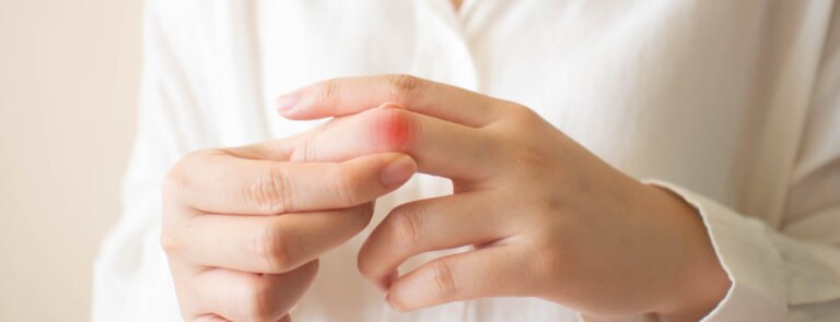 How to live with Gout