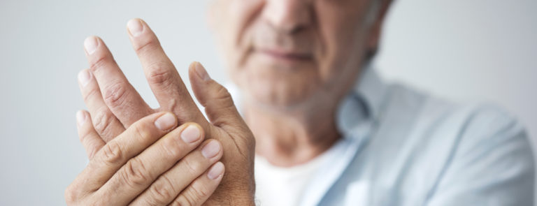 a man with arthritis symptoms in his hands and fingers