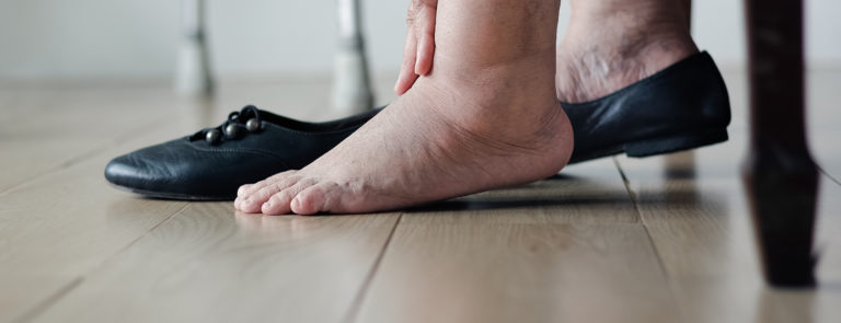 What is water retention? Spotting the signs and treating the symptoms image