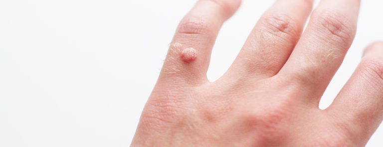 What Is A Wart? And Other FAQs