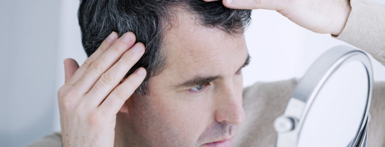 Best treatments to slow down hair loss image