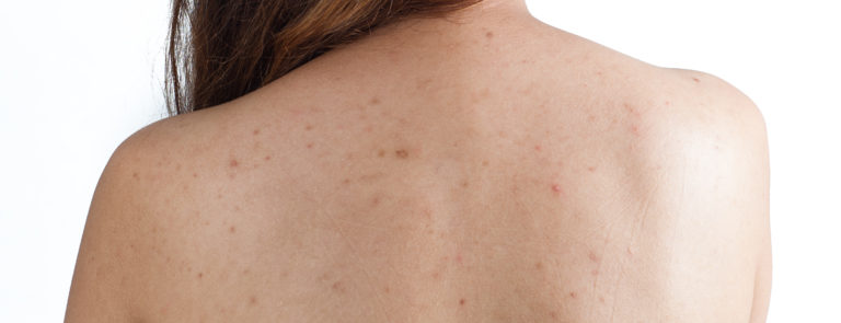 acne on back