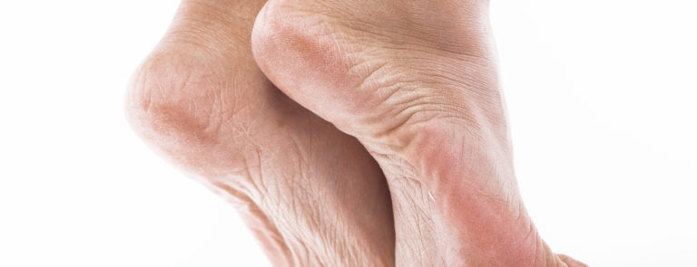 How to get rid of hard skin on feet image
