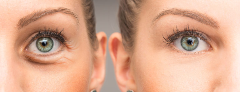 How to get Rid of Puffy Eyes & it's Causes