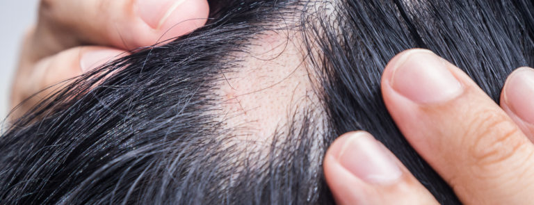 Alopecia Areata: What Is Is?