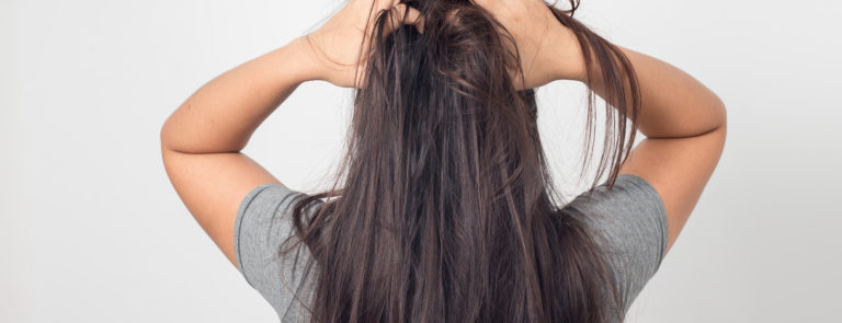 Reasons why you might have an itchy scalp image