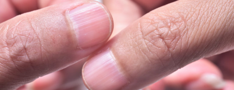 what causes ridged nails